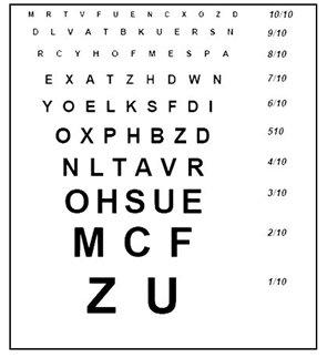 d07a5893fd3bc Les 4 conditions pour avoir de bonnes lunettes