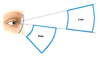 Bifocal à 2 sphères 2 profondeurs de champs avec un verre bi-focal 7efed951ec88