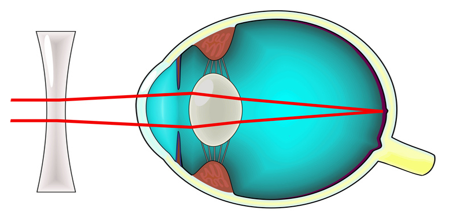 3d0bdd39e9cfee Soigner la myopie   Les troubles de la vision par ExperOptic