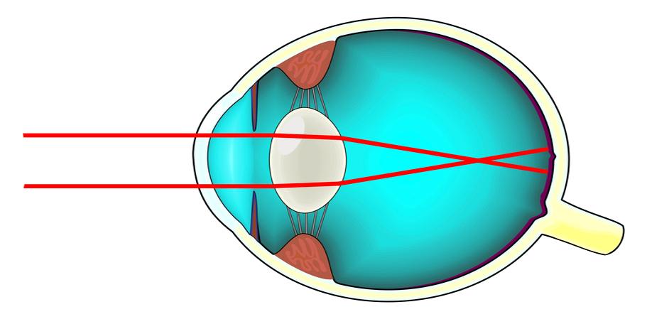 Soigner la myopie   Les troubles de la vision par ExperOptic 9150bcea686d